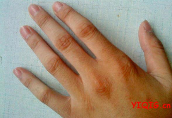 左手无名指手指发麻_手指发麻预示的疾病 按摩方法介绍_一起过