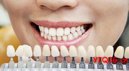 牙齿是越白越健康?时下流行的爱牙误区