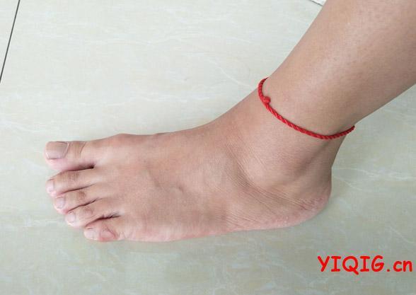 孕妇脚痛的原因及应对措施介绍
