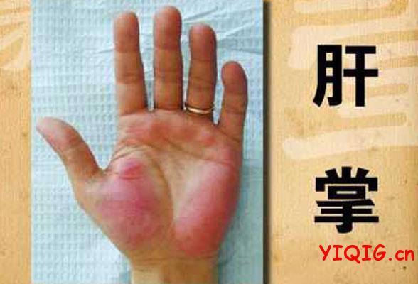 手纹真的能反应出一个人的健康吗?