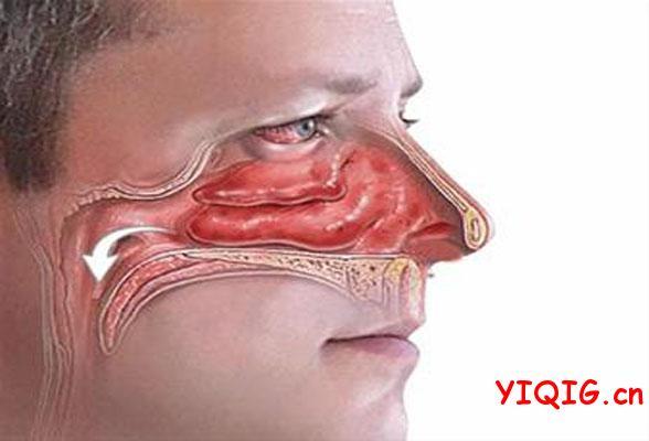 黄痰和黄鼻涕是同一部位产生的吗?代表发炎感染吗?